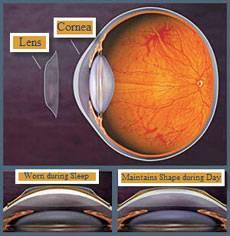 corneal moldings06