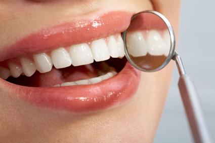Dental Exam - Wisdom Teeth - Dentist - Delaware OH