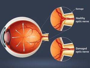 glaucoma treatment 300×225