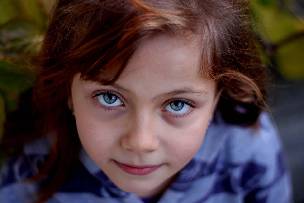 redhead girl with blue eyes, after blephex treatment