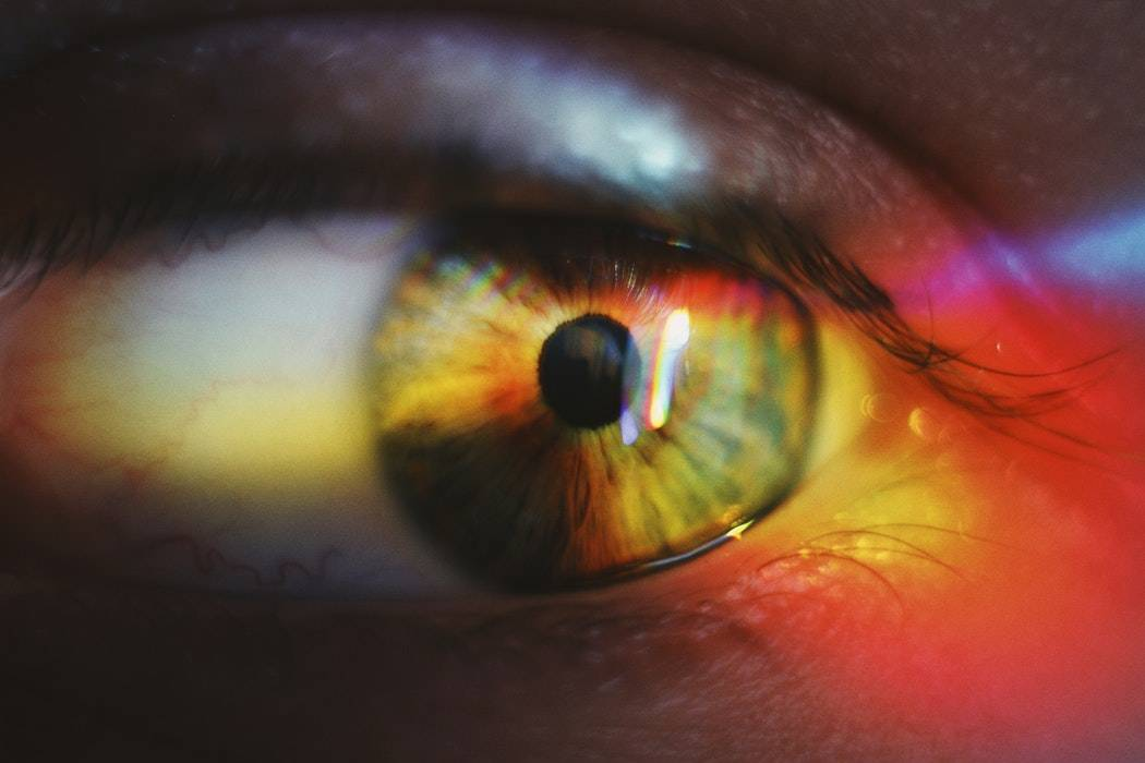 Close Up of Eye with Poor Vision from Albinism