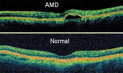 AMD-OCT