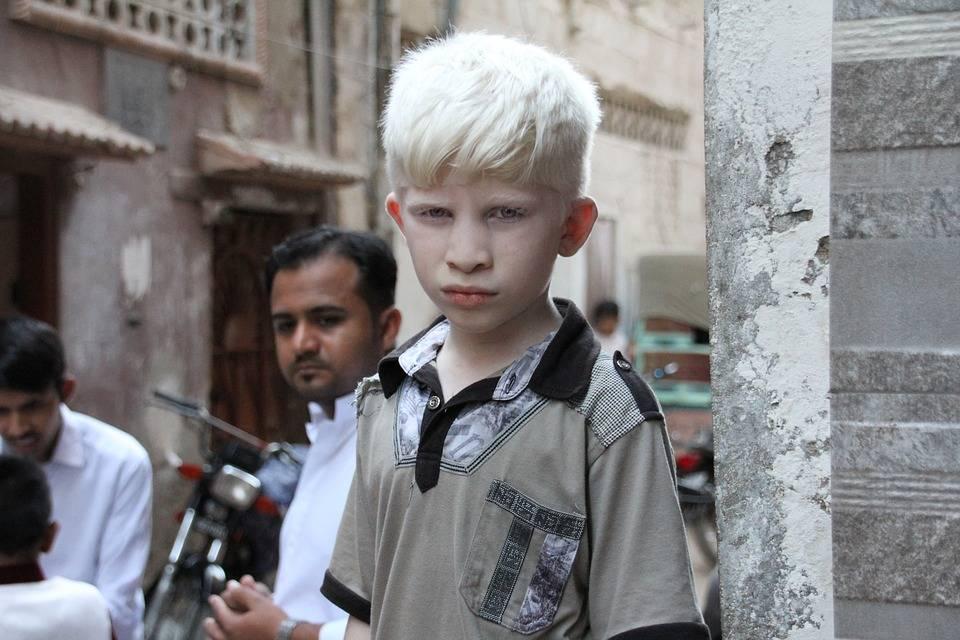 Boy with Albinism on Street Corner