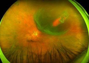Color - Retinal Detachment - California; Courtesy of J Edward Ysasaga, MD; Courtesy of Optos;