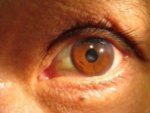 Eye Doctor, Corneal Scarring in Houston, TX.
