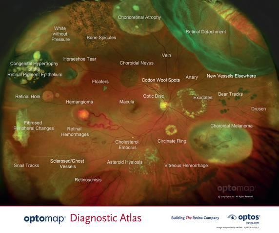 Optomap-Diagnostic-Atlas