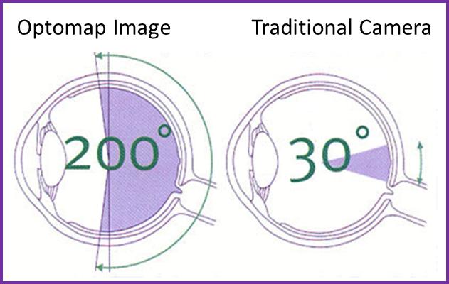 Optomap Image Comparison