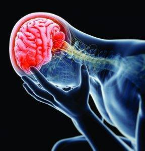 1409184723 concussion
