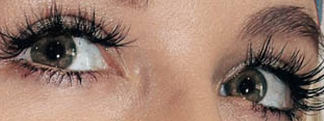 Eye doctor, woman received Latisse eyelash treatment in Kamloops, BC