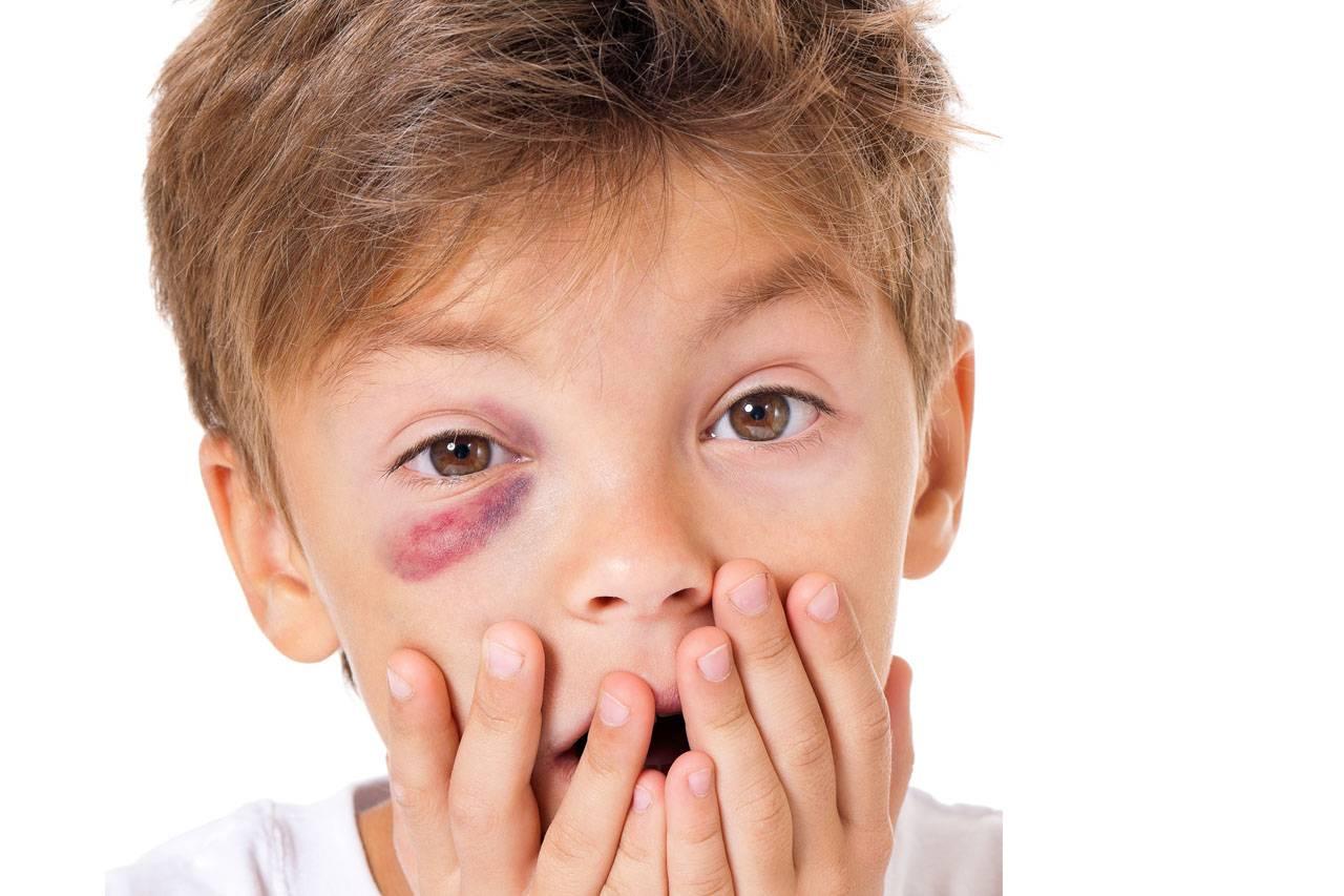 eye-injury