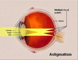 Astigmatism Causes, Symptoms, Diagnosis, Treatment, Prevention