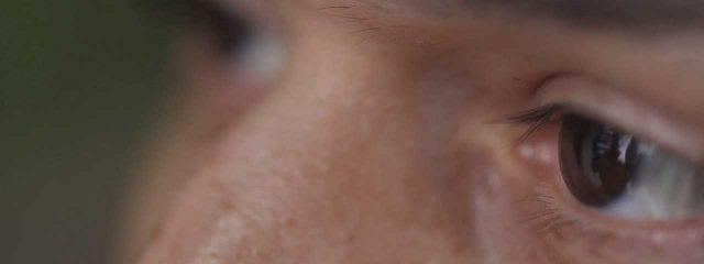 Blinking Exercises for Dry Eyes