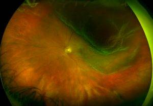 California Retinal DetachmentRetinalHolesTearsDetachments3