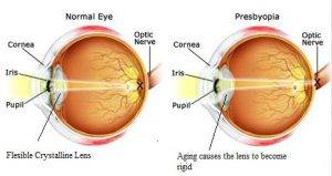 presbyopia test1