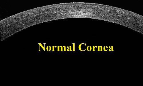 normal cornea oct