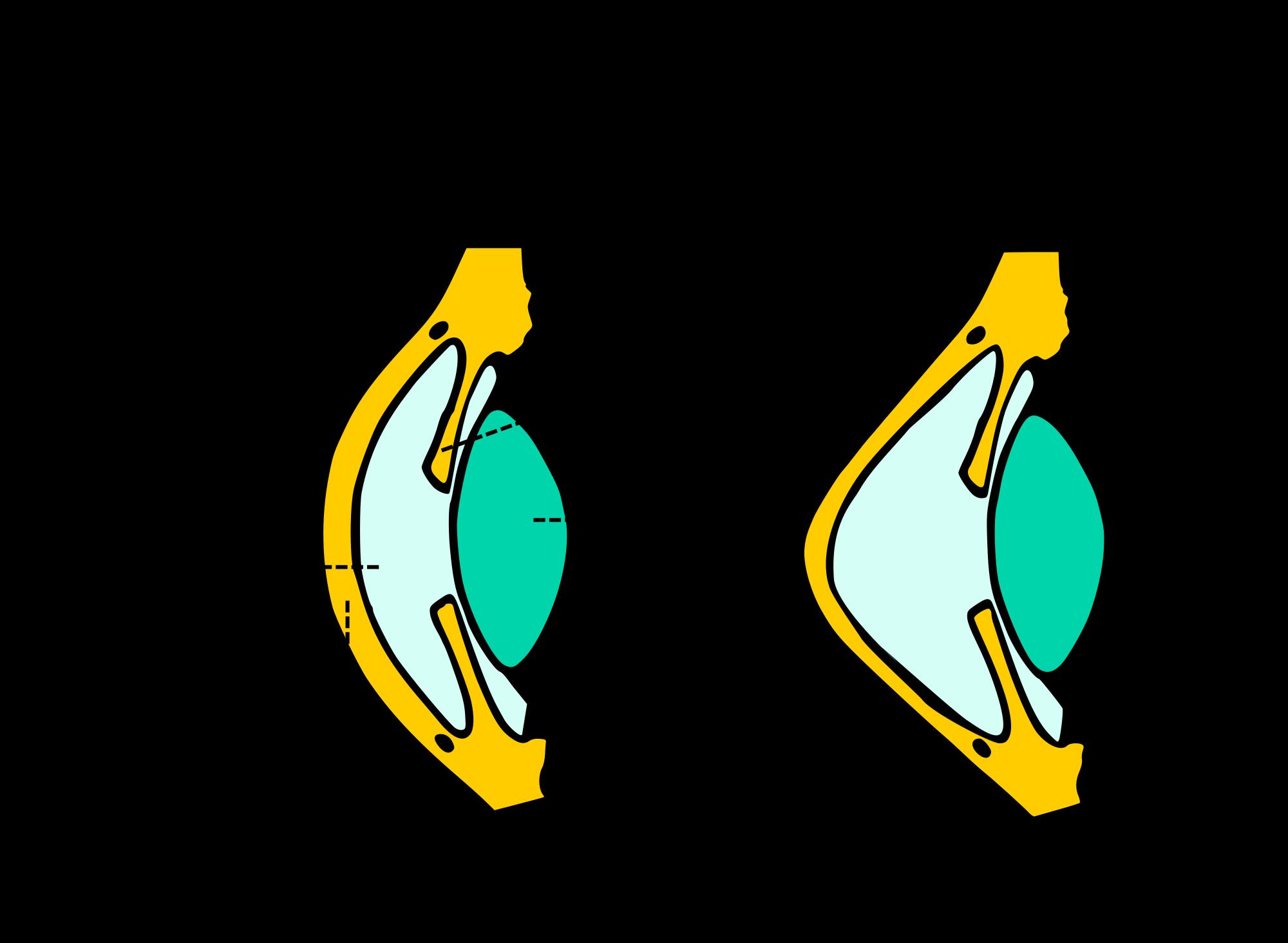 kerataconus image