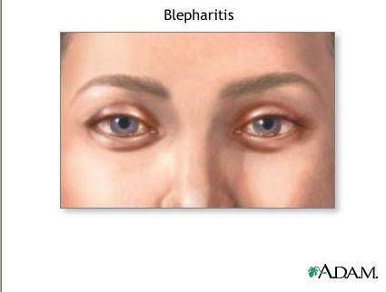 blehparitis