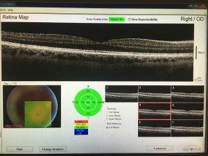 OCT retinal image of the central retina