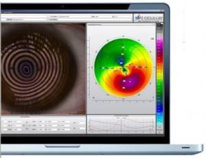 oculus-k5m-präsentation eye exam in scarborough on