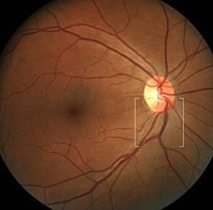 OPTOS retinal exam orange county