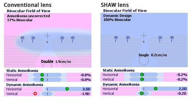 SHAW™ lens