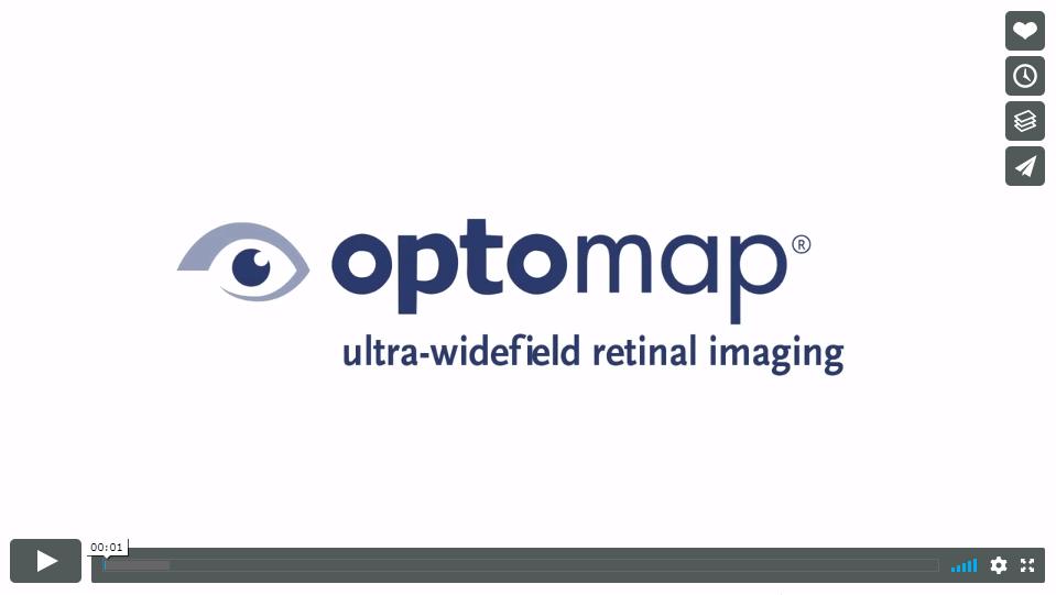 optomap video capture(1)