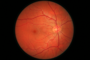 Retinal_Image