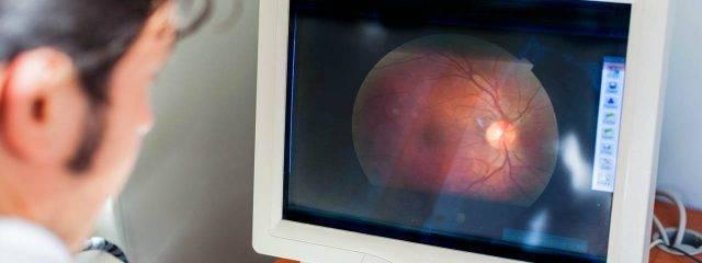 Eye doctor, man looking at an eye scan in Oak Brook, IL
