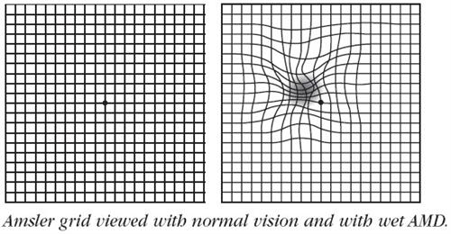 amsler grid full