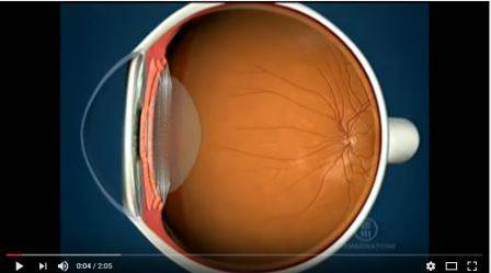 optomap, Eye Doctor, Rockledge, FL