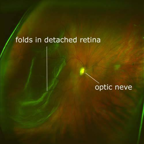Detached Retina Scan with Daytona Optomap