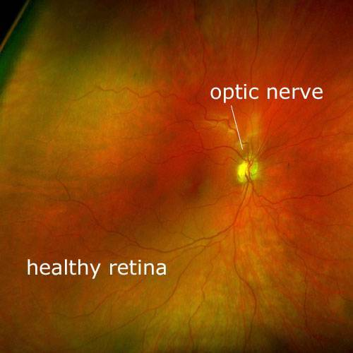 Healthy Retina Scan with Daytona Optomap