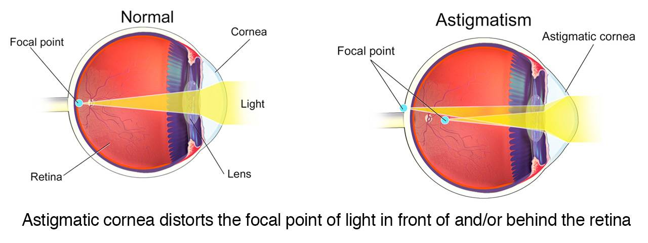 toric lens diagram for astigmatism