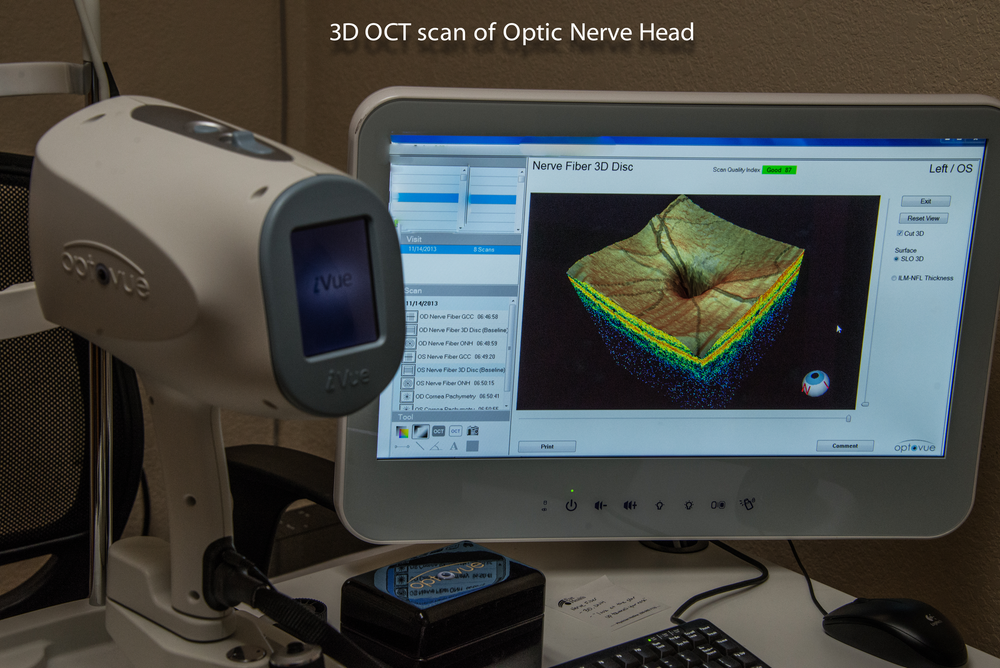optic-nerve.png