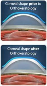 CRT image of cornea shaping rockville