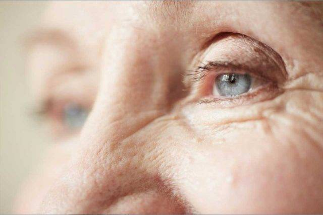 optometrist, elderly woman after corneal graft in Fair Lawn, NJ