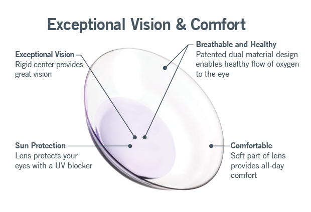 Hybrid contact lenses in fulton mo near jefferson city