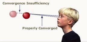 Convergence Insufficiency (CI) Treatment in Greenville, SC