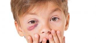 Eye care, Woman with eye emergency in Piscataway, NJ